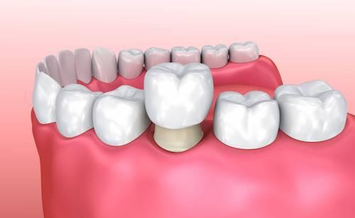 Dental crown covering damaged tooth