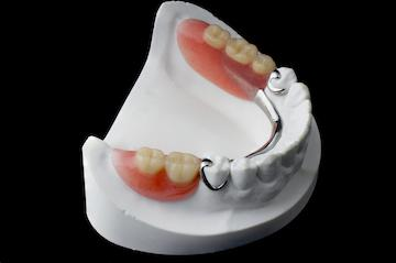 Set of partial dentures on model of teeth at 40504 dentist office