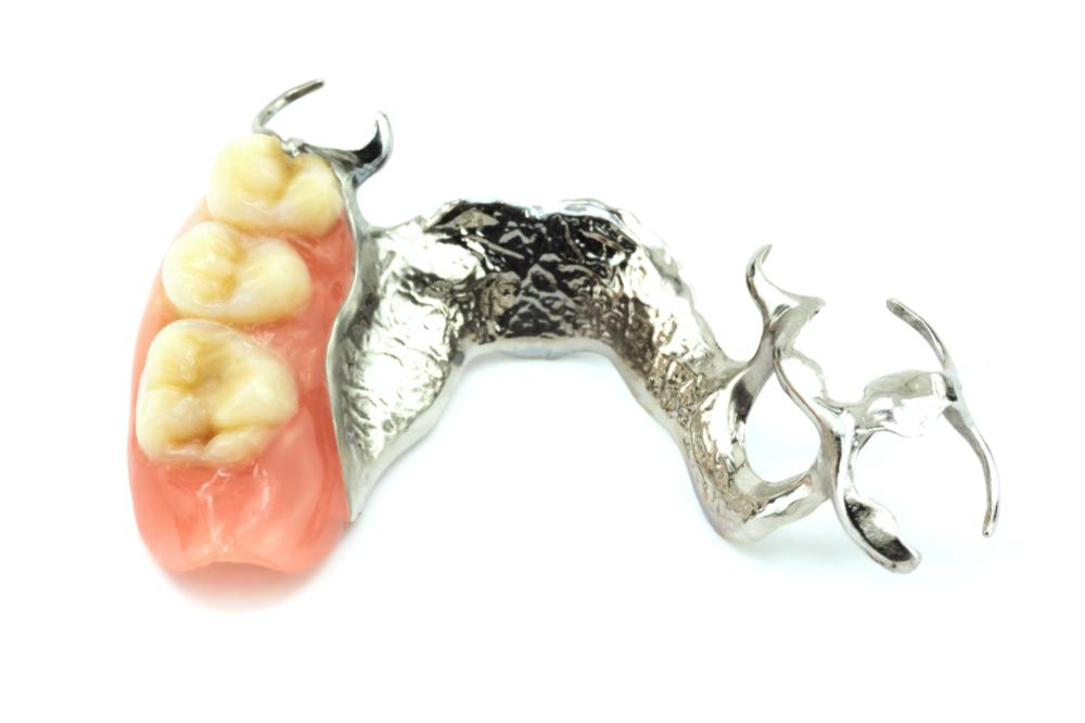 Partial Dentures & Tooth Replacement in Lexington