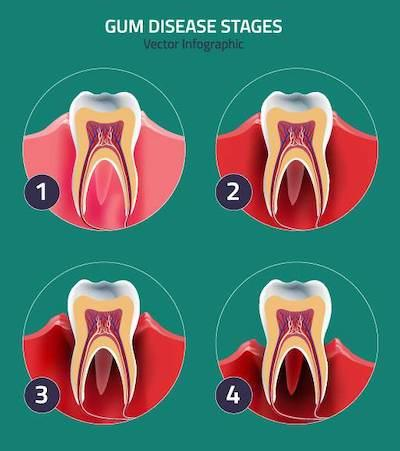 Diagram of the 4 stages of gum disease