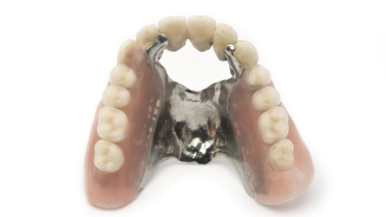 Denture Examples | Garden Springs Dental